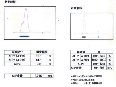 高い 血液 検査 ck CK(CPK)が高い・低い場合